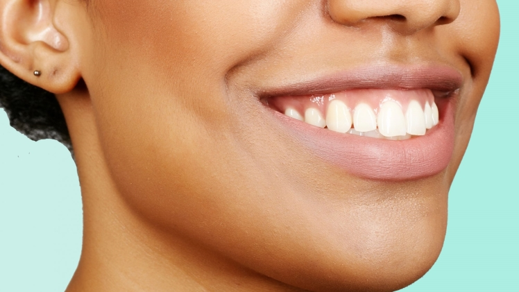 5 Expert-Approved Tips for Effective Teeth Whitening